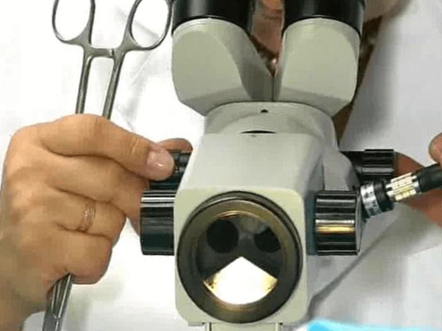 Что такое кольпоскопия при миоме матки и как ее выполняют?