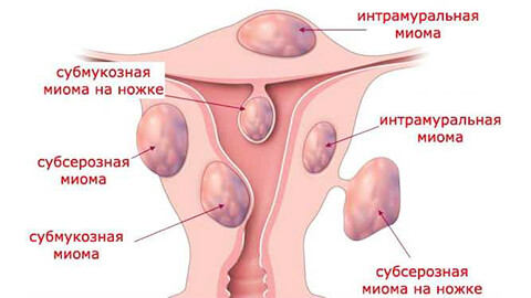 Миоматозный узел тела матки: что это такое?