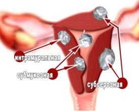 Одиночная миома матки: причины, симптомы и лечение