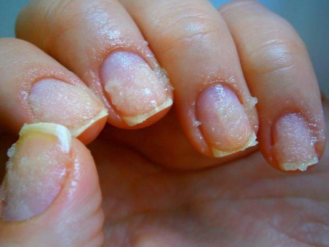 Слоятся и ломаются ногти на руках